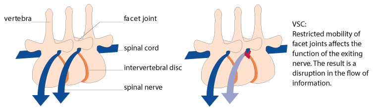 What is a Vertebral Subluxation Complex (VSC)?